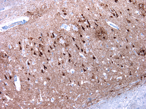 hippocampe-Alzheimer-degenerescences-neurofibrillaires